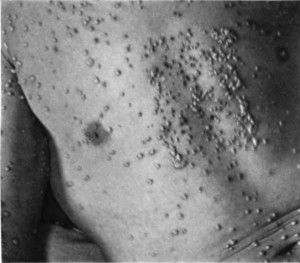 "An example of small pox, from book, ""The diagnosis of smallpox, ""by T.F. Ricketts, 1910"
